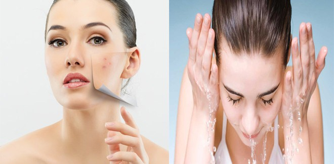 5 Most Effective Natural Pimple Treatments For Oily Skin
