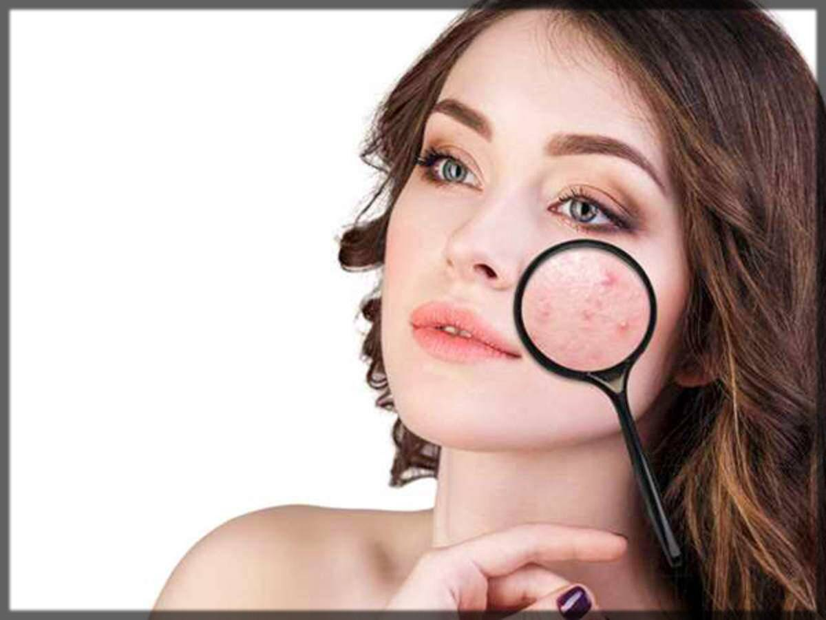 natural remedies for acne scars, pimples, and marks