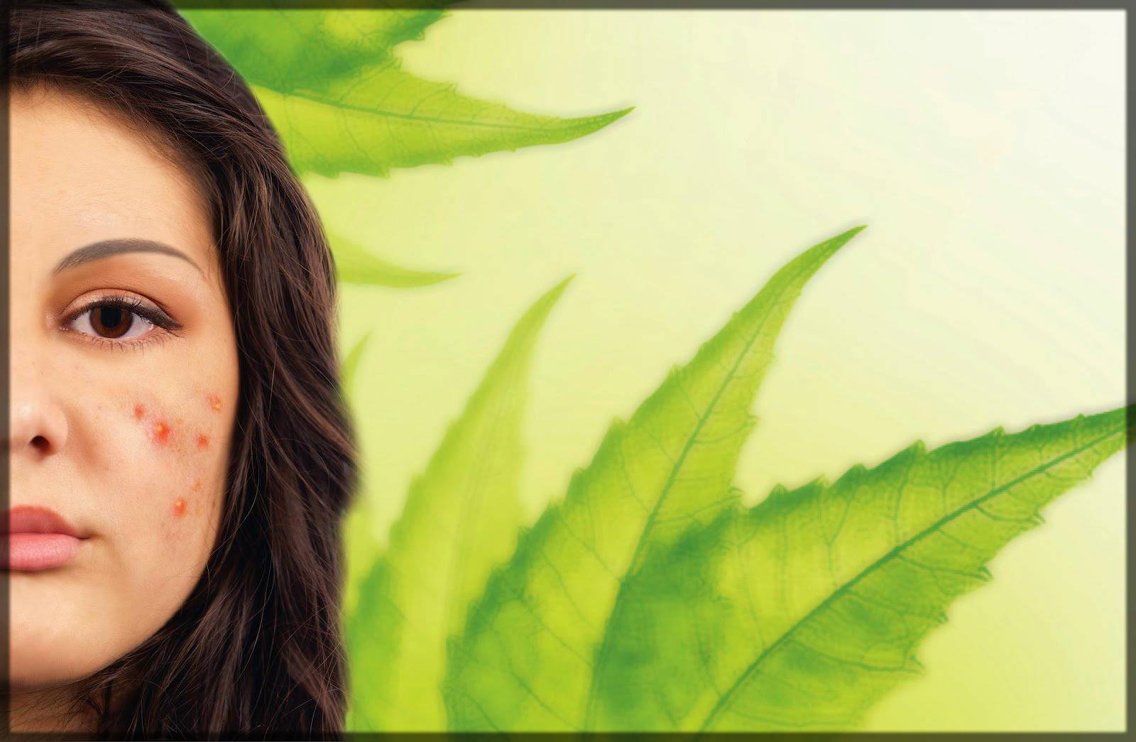 neem leaves for acne and pimples