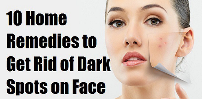 Top 10 Best Home Remedies To Remove Dark Spots On Face