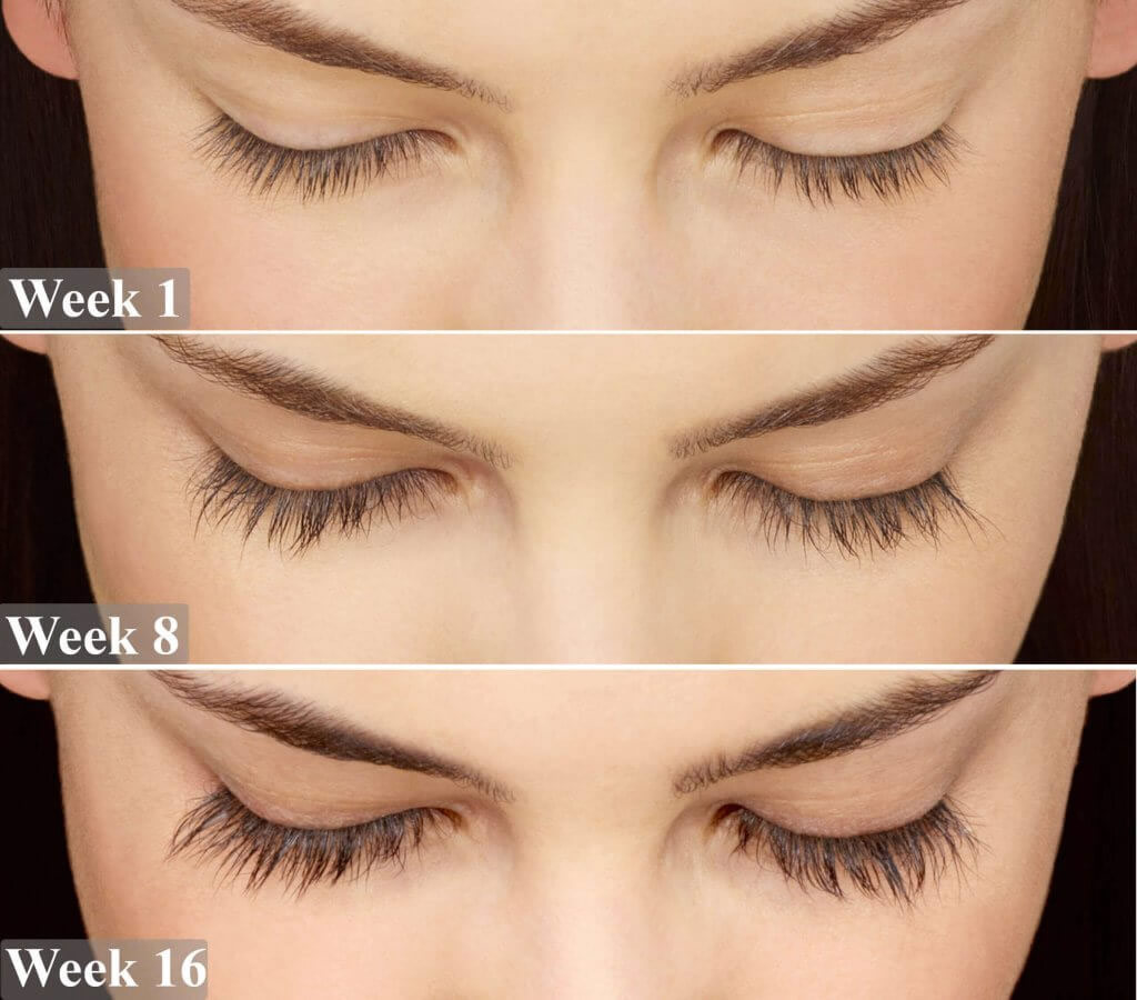 thick lashes remedies